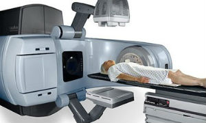 IGRT - Image-Guided Radiation Therapy